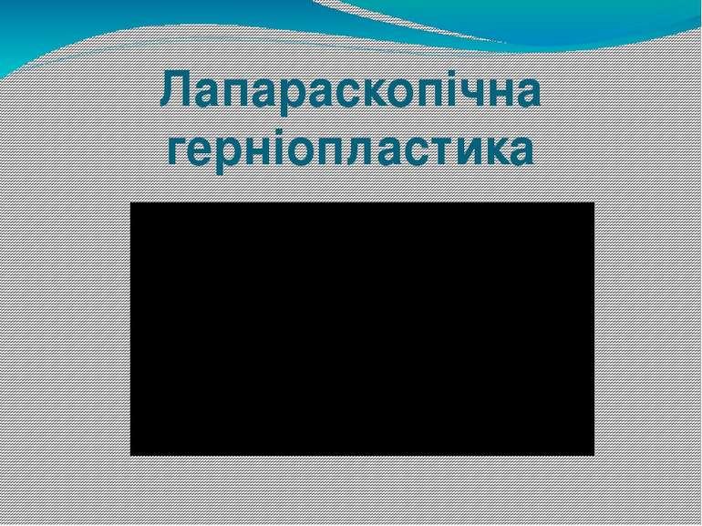 Лапараскопічна герніопластика