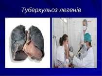 Туберкульоз легенів