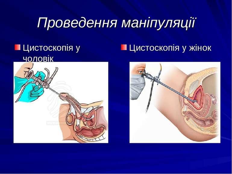 Проведення маніпуляції Цистоскопія у жінок Цистоскопія у чоловік