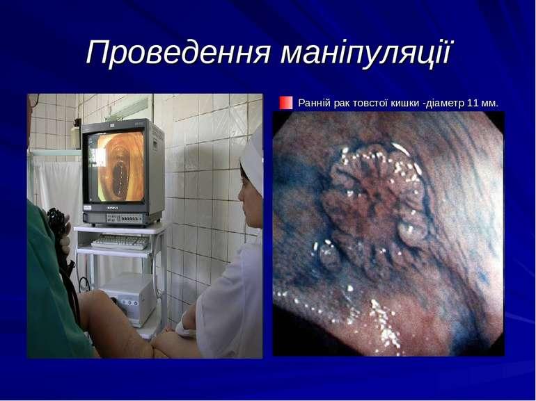 Проведення маніпуляції Ранній рак товстої кишки -діаметр 11 мм.