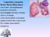 Саркоїдоз (хвороба Беньє-Бека-Шаумана)- системне захворювання неясної етіоло...