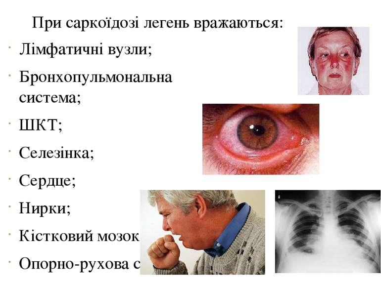 При саркоїдозі легень вражаються: Лімфатичні вузли; Бронхопульмональна систем...