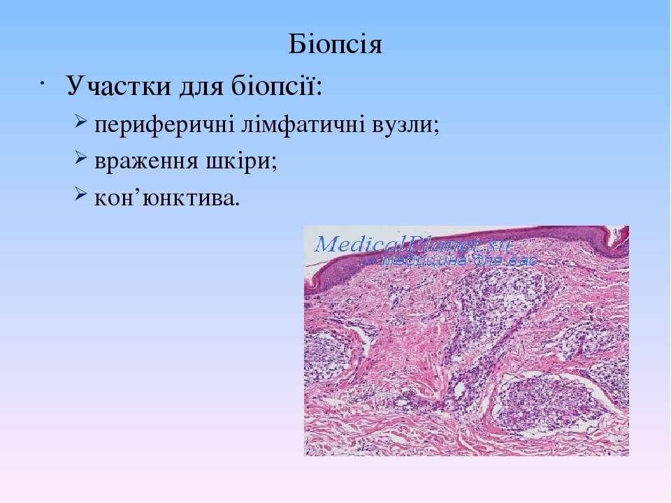Біопсія Участки для біопсії: периферичні лімфатичні вузли; враження шкіри; ко...