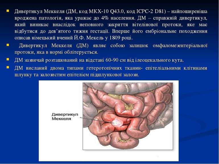 Дивертикул Меккеля (ДМ, код МКХ-10 Q43.0, код ICPC-2 D81) – найпоширеніша вро...