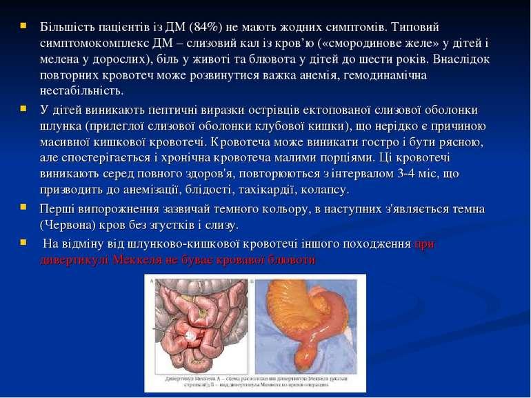 Більшість пацієнтів із ДМ (84%) не мають жодних симптомів. Типовий симптомоко...
