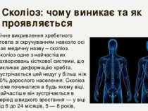 Сколіоз: чому виникає та як проявляється Бічне викривлення хребетного стовпа ...