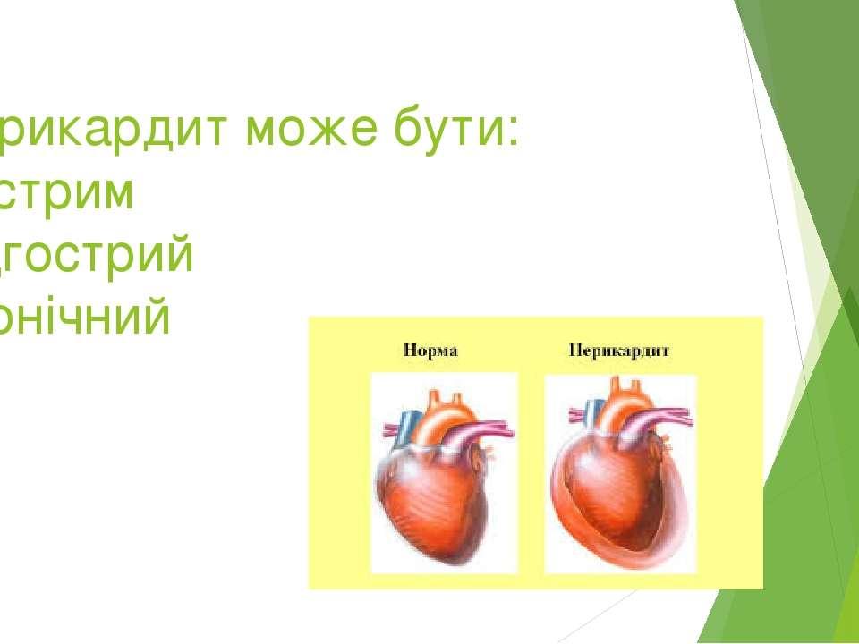Перикардит може бути: Гострим підгострий хронічний