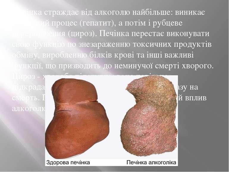 Печінка страждає від алкоголю найбільше: виникає запальний процес (гепатит), ...