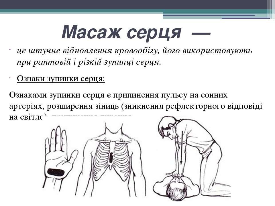 Масаж серця — це штучне відновлення кровообігу, його використовують при рапто...