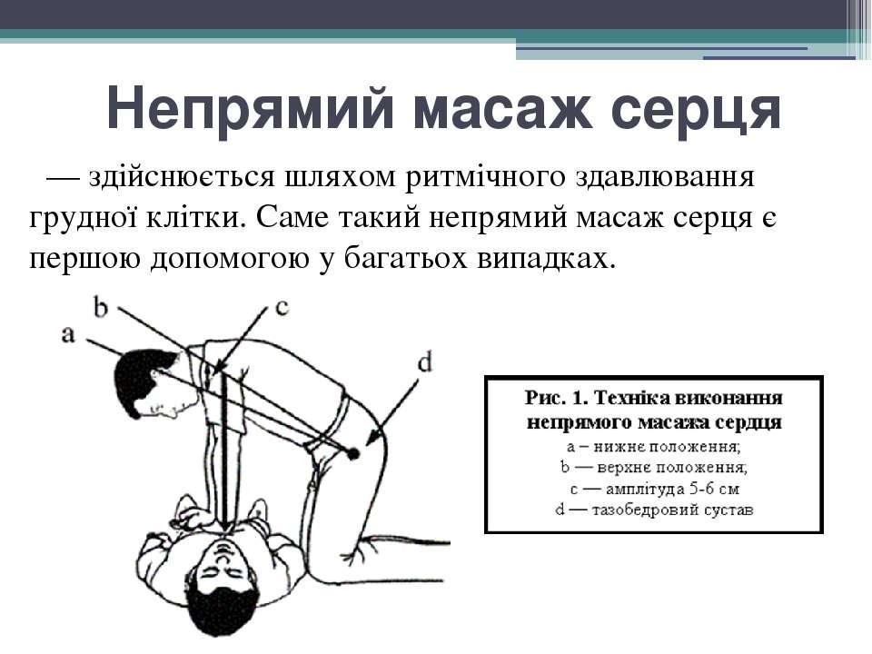 Непрямий масаж серця — здійснюється шляхом ритмічного здавлювання грудної клі...