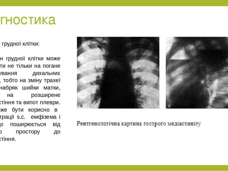 Діагностика Рентген грудної клітки:  Рентген грудної клітки може вказувати н...