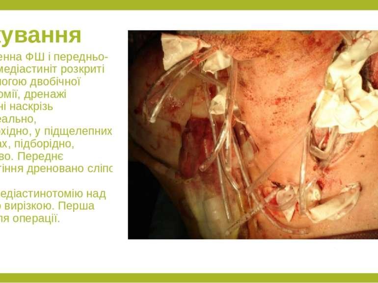 Лікування Одонтогенна ФШ і передньо-верхній медіастиніт розкриті за допомогою...