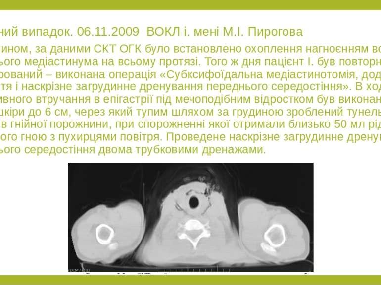 Клінічний випадок. 06.11.2009 ВОКЛ і. мені М.І. Пирогова Таким чином, за дани...