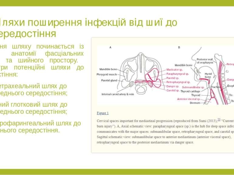 Шляхи поширення інфекцій від шиї до середостіння Розуміння шляху починається ...