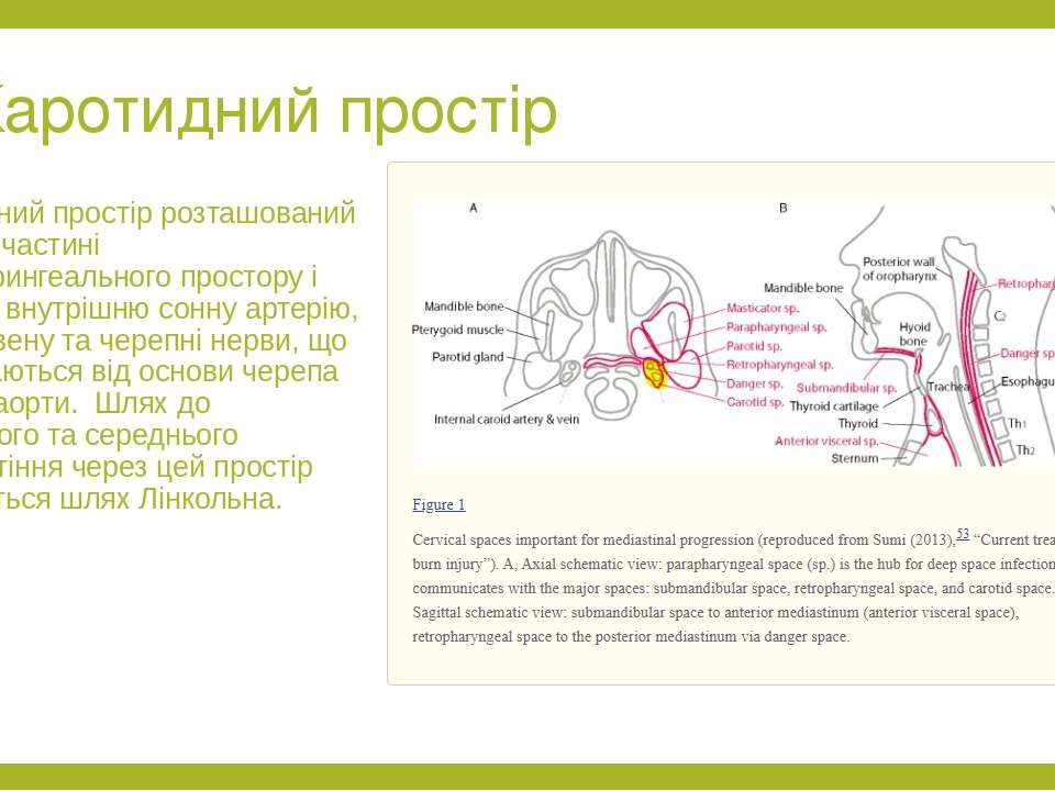 Каротидний простір Каротидний простір розташований в задній частині парафарин...