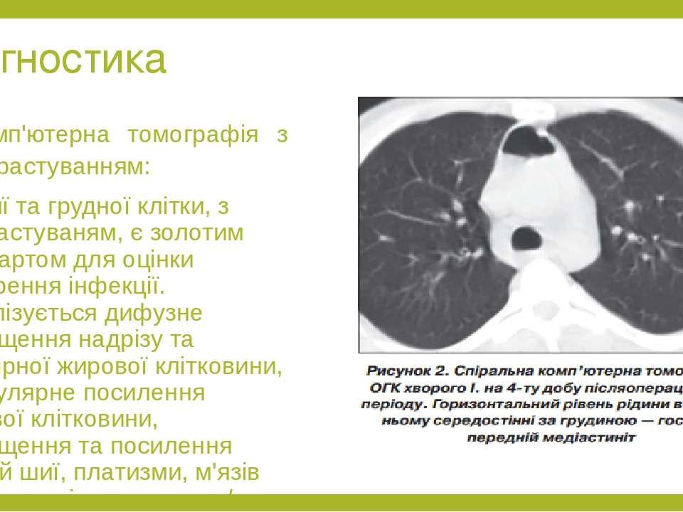 Діагностика Комп'ютерна томографія з контрастуванням: КТ шиї та грудної клітк...