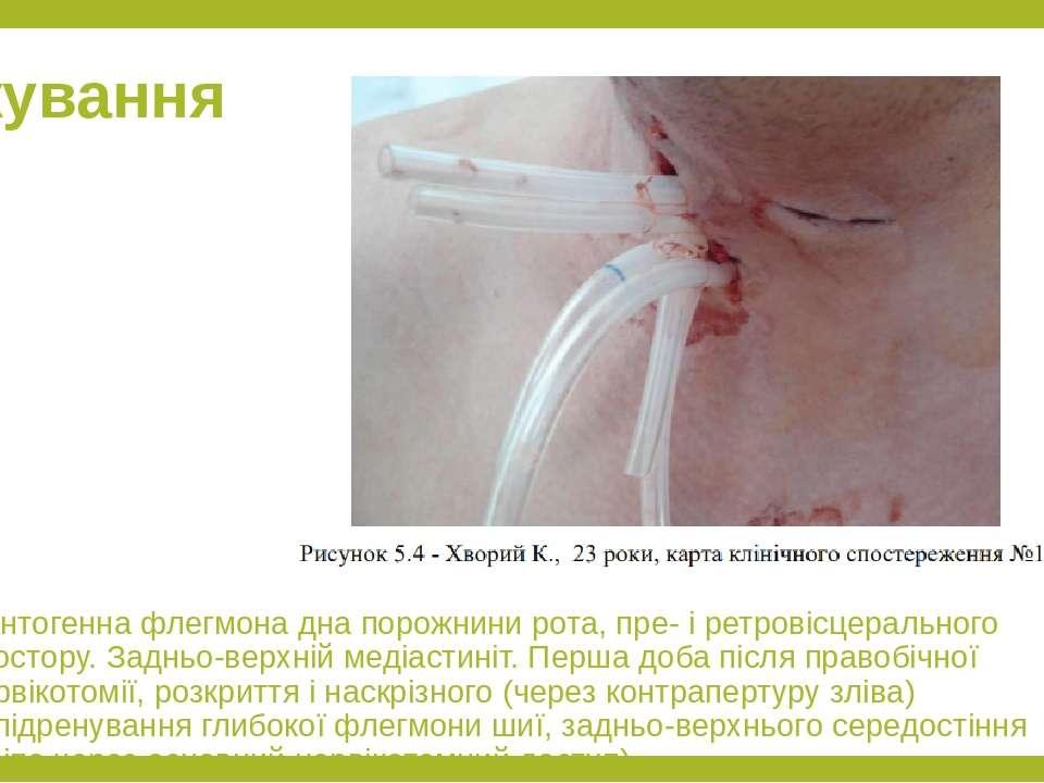 Лікування Однтогенна флегмона дна порожнини рота, пре- і ретровісцерального п...