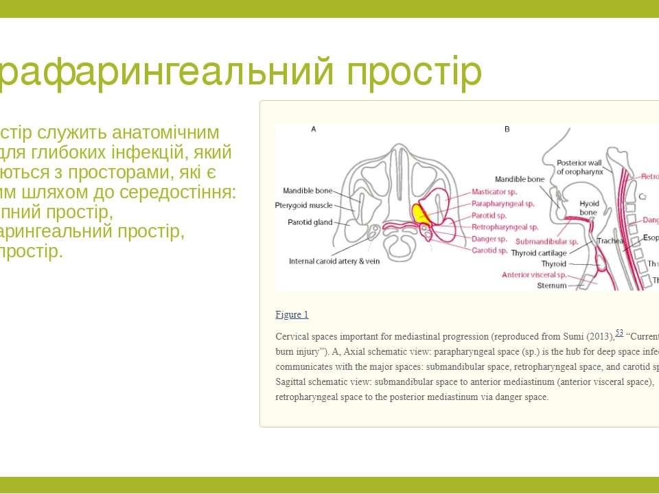 Парафарингеальний простір Цей простір служить анатомічним місцем для глибоких...