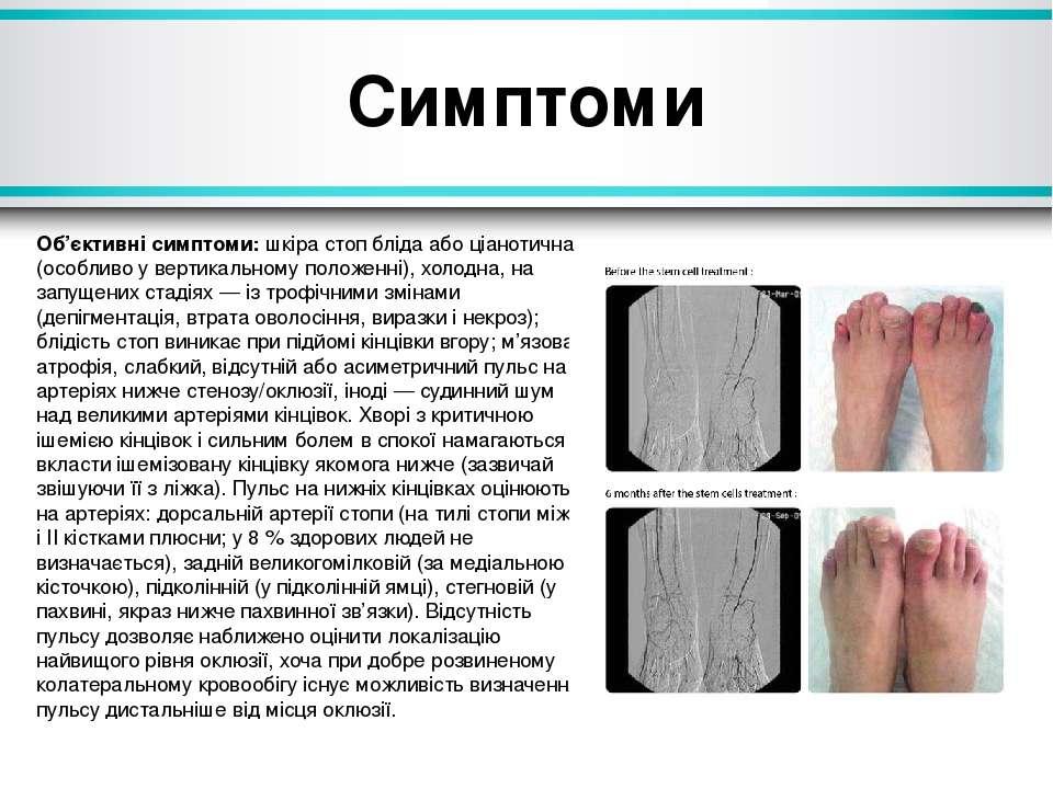 Симптоми Об'єктивні симптоми:шкіра стоп бліда або ціанотична (особливо увер...