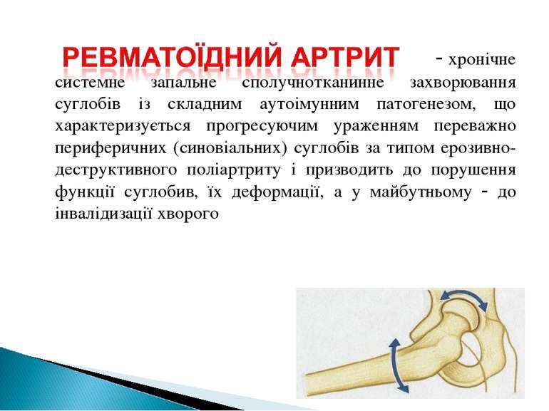 хронічне системне запальне сполучнотканинне захворювання суглобів із складним...