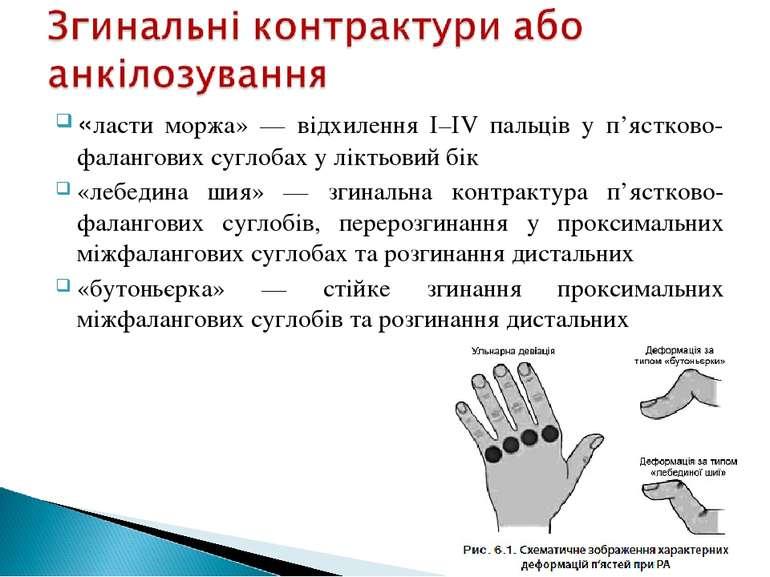 «ласти моржа» — відхилення І–ІV пальців у п'ястково-фалангових суглобах у лік...
