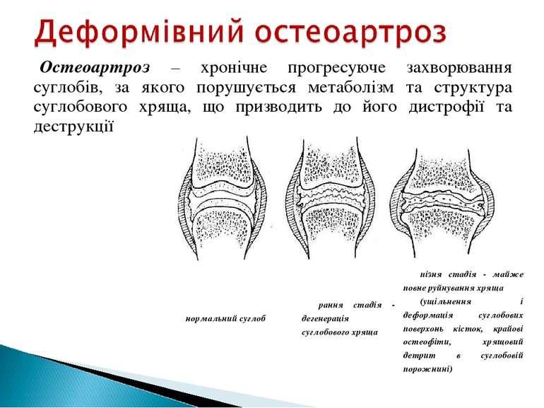 Остеоартроз – хронічне прогресуюче захворювання суглобів, за якого порушуєтьс...