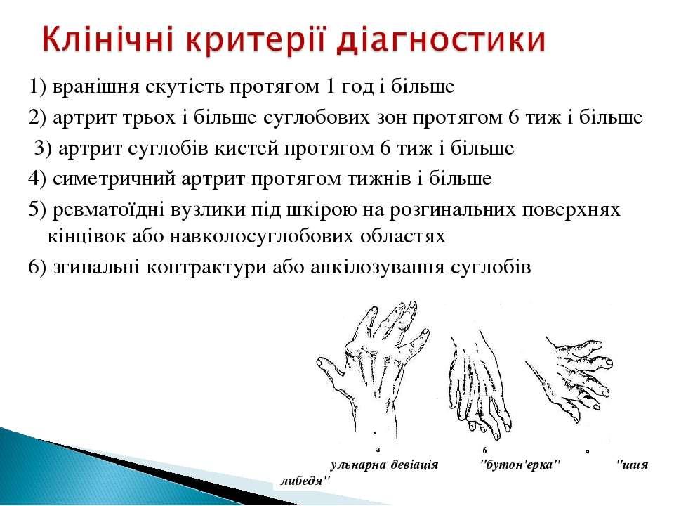 1) вранішня скутість протягом 1 год і більше 2) артрит трьох і більше суглобо...