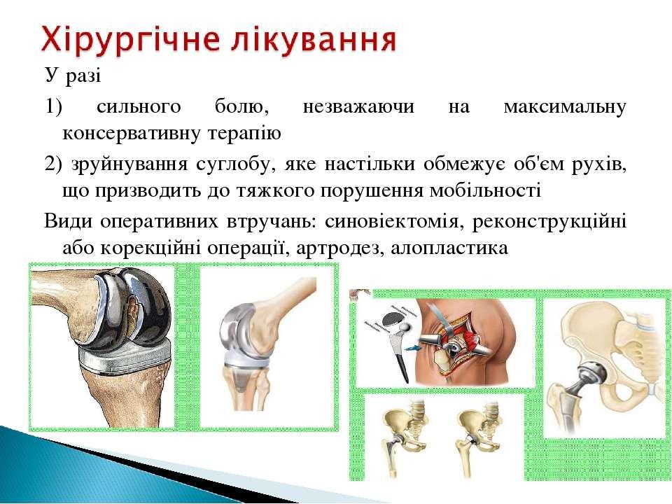 Уразі 1) сильного болю, незважаючи на максимальну консервативну терапію 2) з...