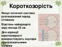 Короткозорість Фокус оптичної системи розташований перед сітківкою Відстань н...