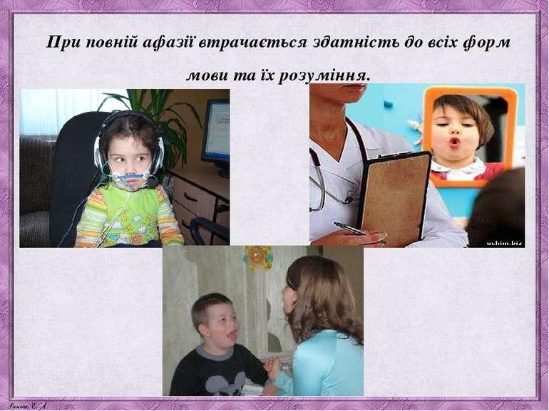 При повній афазії втрачається здатність до всіх форм мови та їх розуміння.