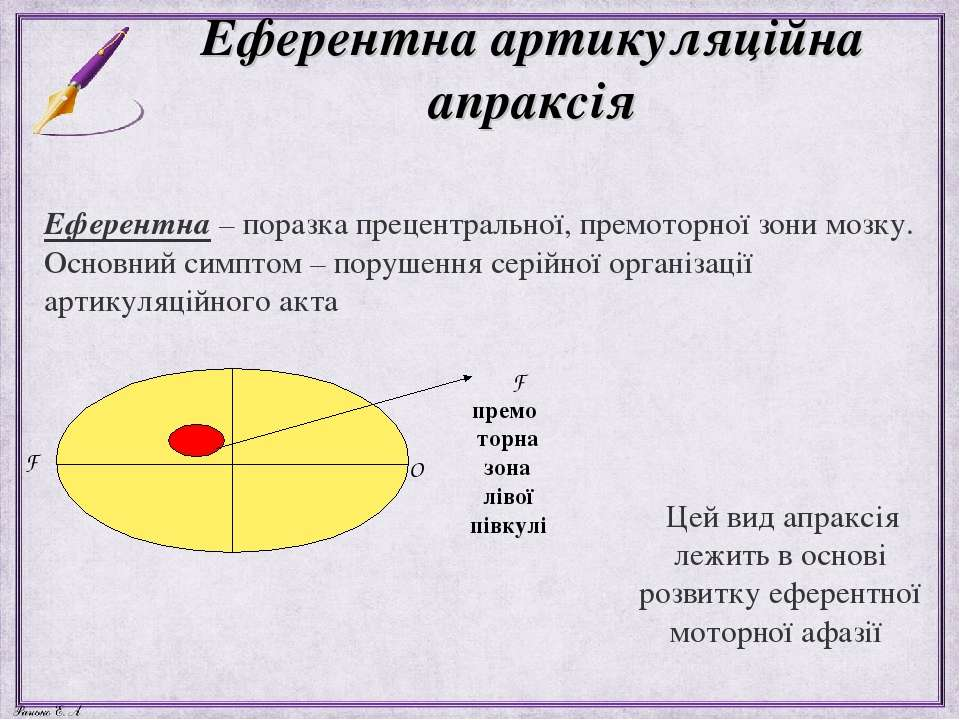 Еферентна артикуляційна апраксія Еферентна – поразка прецентральної, премотор...