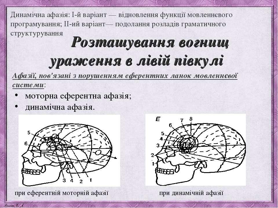 Динамічна афазія: I-й варіант — відновлення функції мовленнєвого програмуванн...