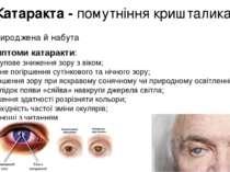 Катаракта - помутніння кришталика Природжена й набута Симптоми катаракти: пос...