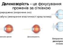 Далекозорість - це фокусування променів за сітківкою Природжена (вкорочене ок...