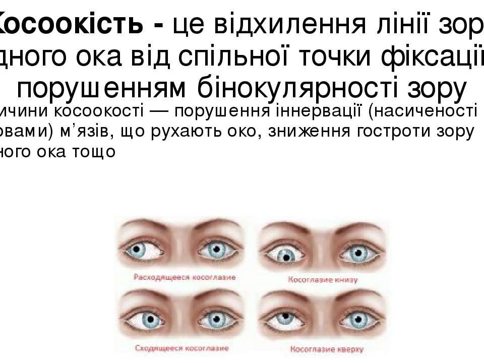Косоокість - це відхилення лінії зору одного ока від спільної точки фіксації ...