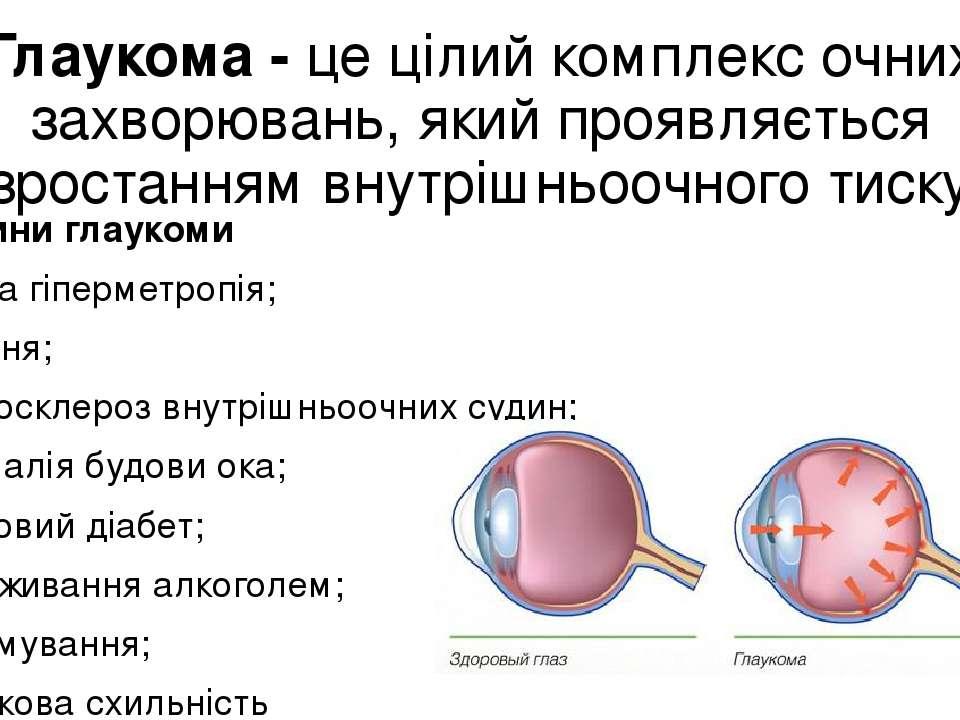 Глаукома - це цілий комплекс очних захворювань, який проявляється зростанням ...
