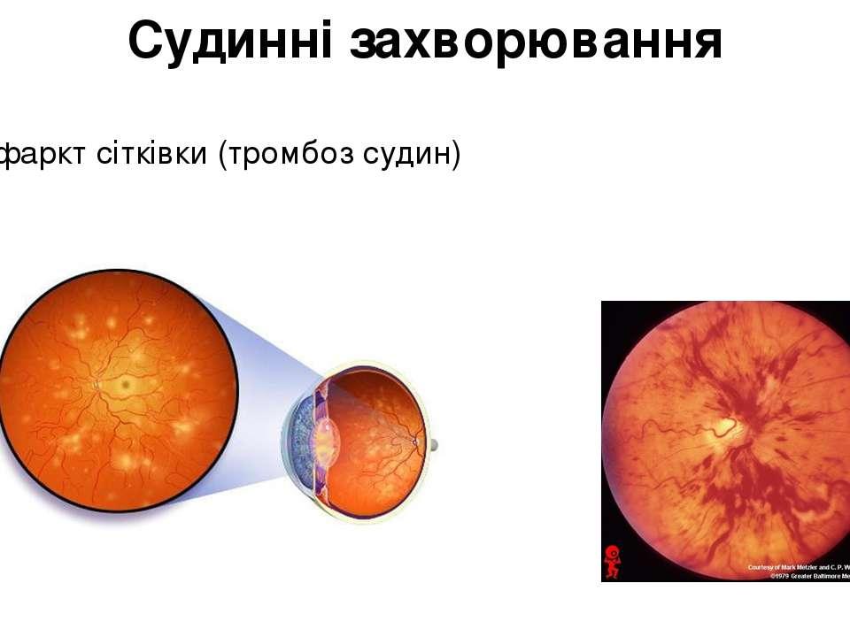 Судинні захворювання Інфаркт сітківки (тромбоз судин)
