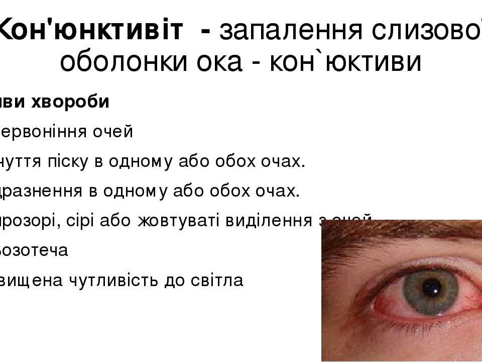 Кон'юнктивіт - запалення слизової оболонки ока - кон`юктиви Прояви хвороби П...