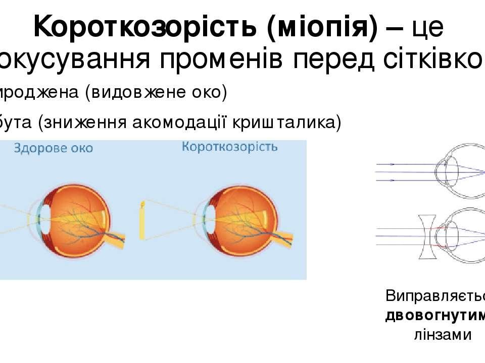 Короткозорість (міопія) – це фокусування променів перед сітківкою Природжена ...