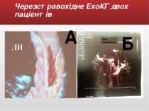Черезстравохідне ЕхоКГ двох пацієнтів А Б Ліве передсердя