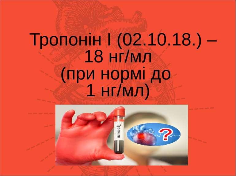 Тропонін І (05.02.18.) – 30,2 нг/мл (при нормі до 1 нг/мл) Тропонін І (02.10....