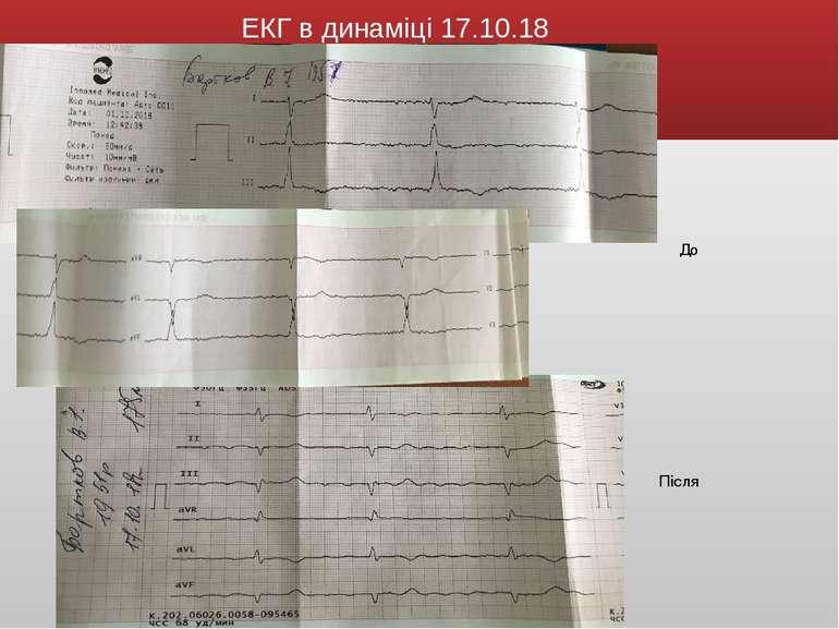 ЕКГ в динаміці 17.10.18 До Після