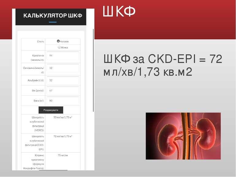 ШКФ ШКФ за CKD-EPI = 72 мл/хв/1,73 кв.м2