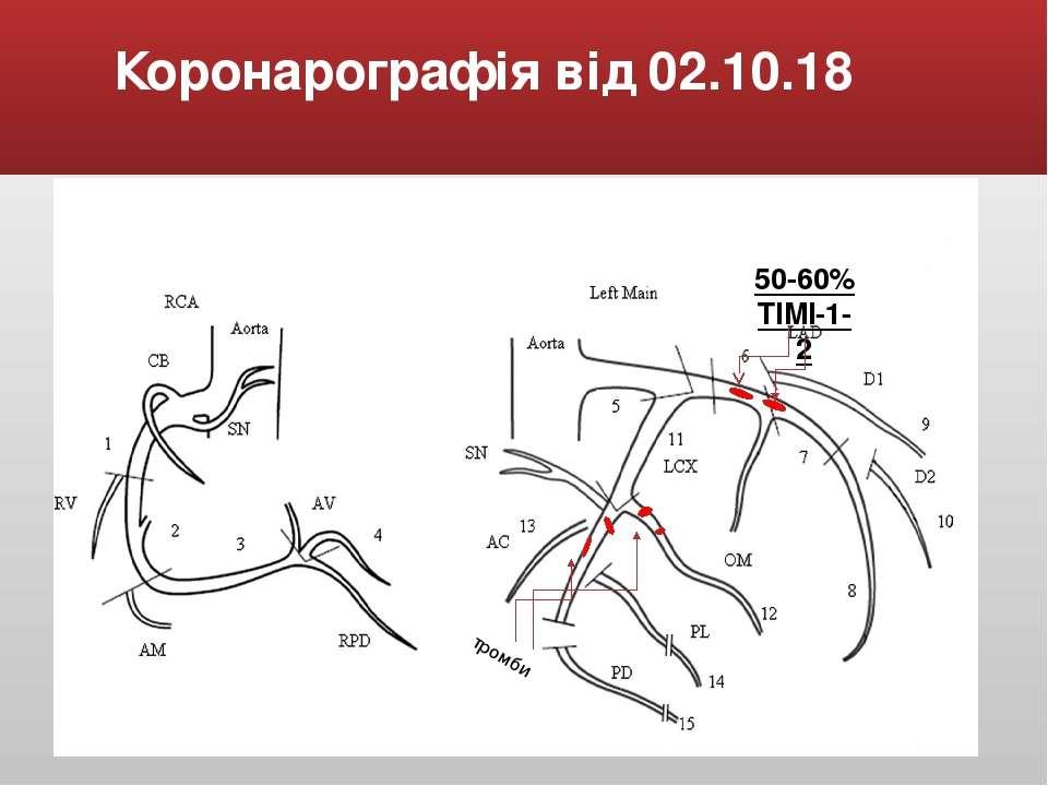 Коронарографія від 02.10.18 50-60% TIMI-1-2 тромби
