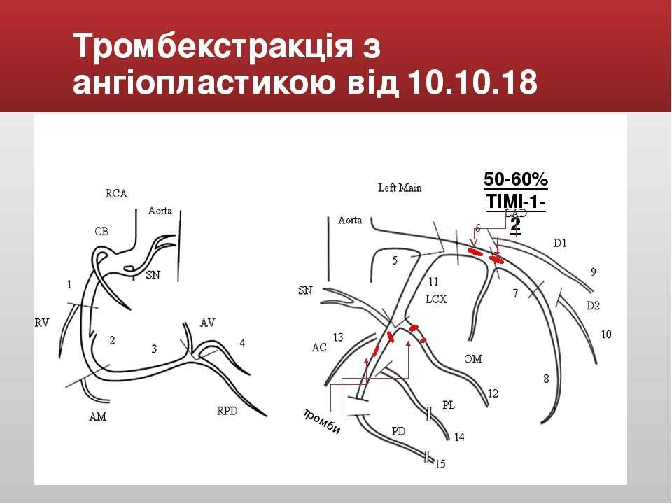 Тромбекстракція з ангіопластикою від 10.10.18 50-60% TIMI-1-2 тромби