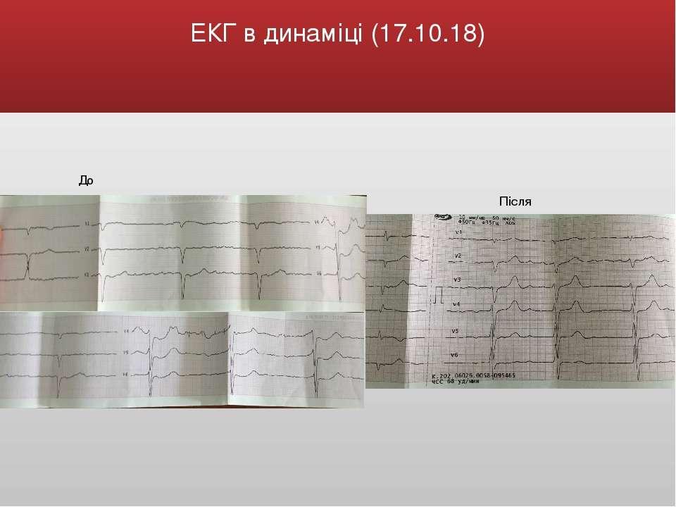 ЕКГ в динаміці (17.10.18) До Після