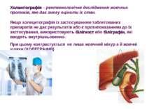 Холангіографія – рентгенологічне дослідження жовчних протоків, яке дає змогу ...