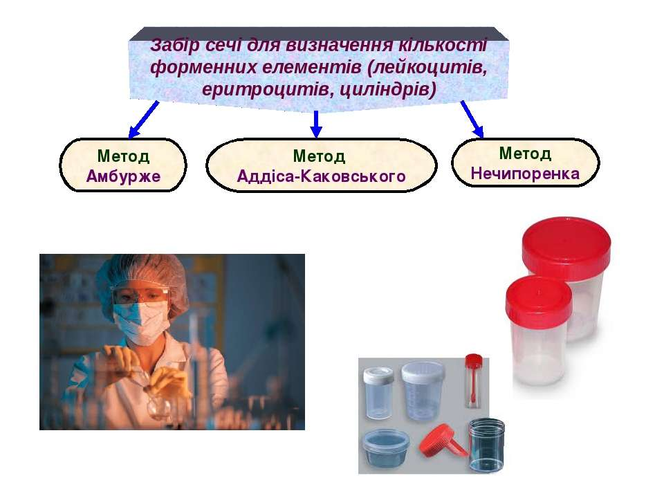 Забір сечі для визначення кількості форменних елементів (лейкоцитів, еритроци...