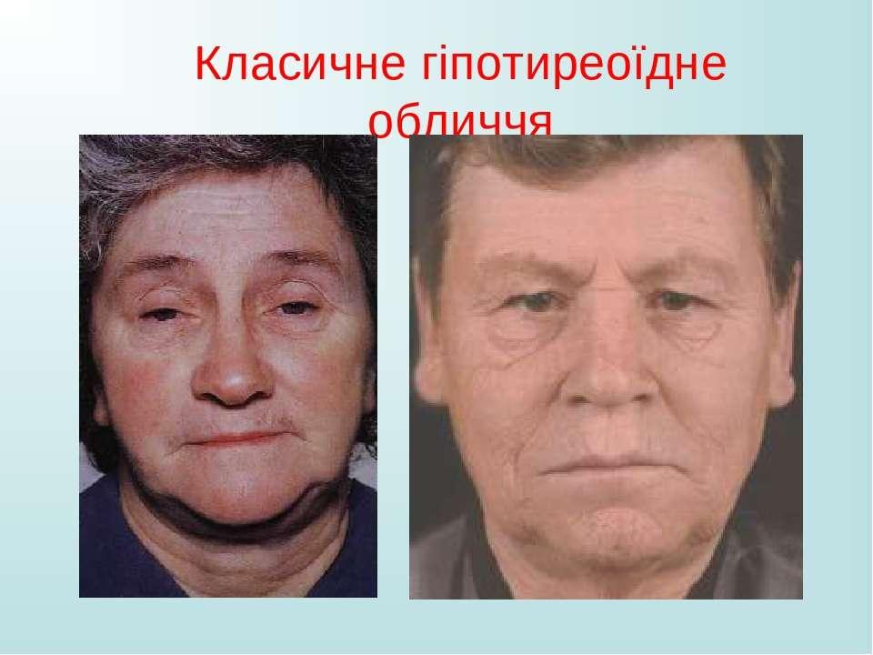 Класичне гіпотиреоїдне обличчя