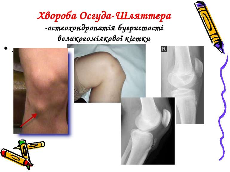 Хвороба Осгуда-Шляттера -остеохондропатія бугристості великогомілкової кістки .